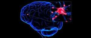 images.jpg Brain pic 300x127 - High Levels of Sugar and Insomnia Associate with the Alzheimer.